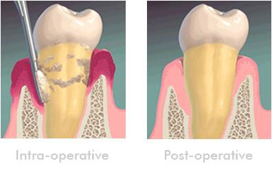 surgical-periodontics